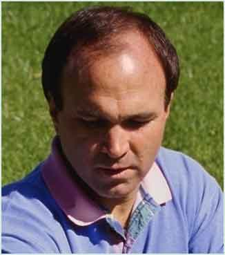 Male Pattern Baldness on Male Pattern Baldness Can Occur To Any Man At Some Point In His Life
