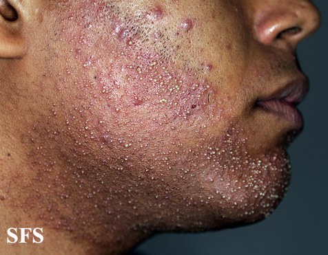 acne caused by steroids