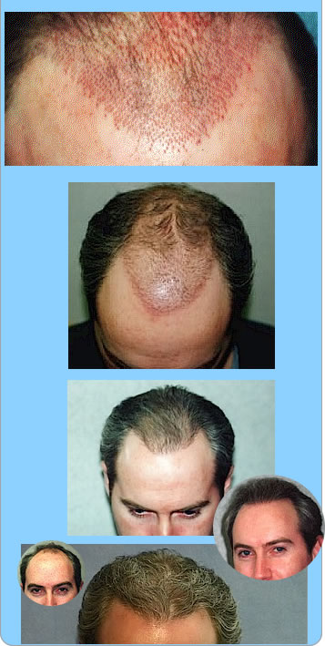 Celebrity Cut Hairstyle Male Hair Loss Treatment Find Them And