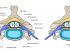 Spinal Nerve Compression