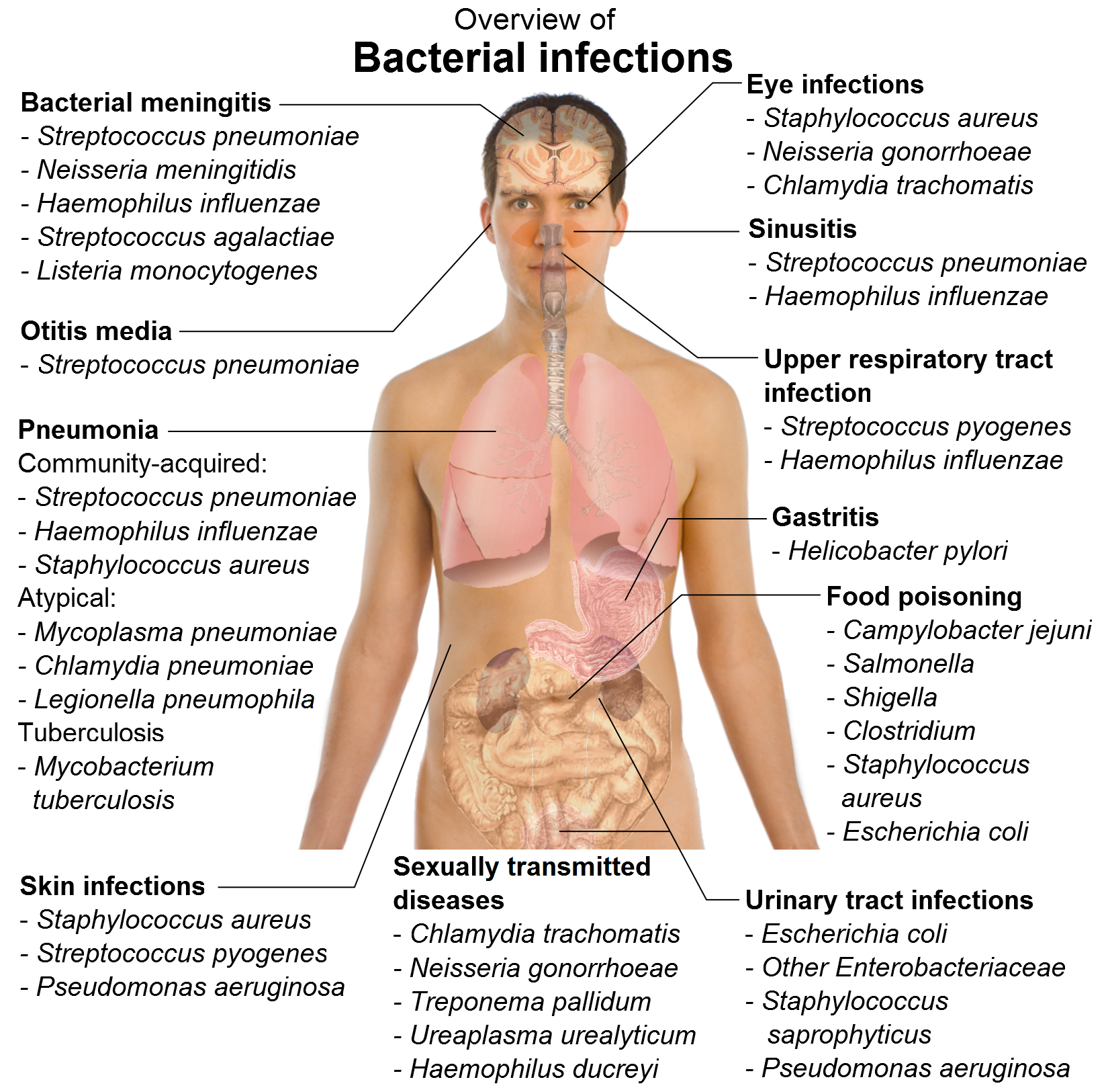 Causes of bacterial skin infections in babies naturally