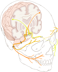 Inflammation of the facial nerve