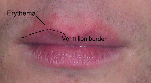 Skin Cancer On Lip Border