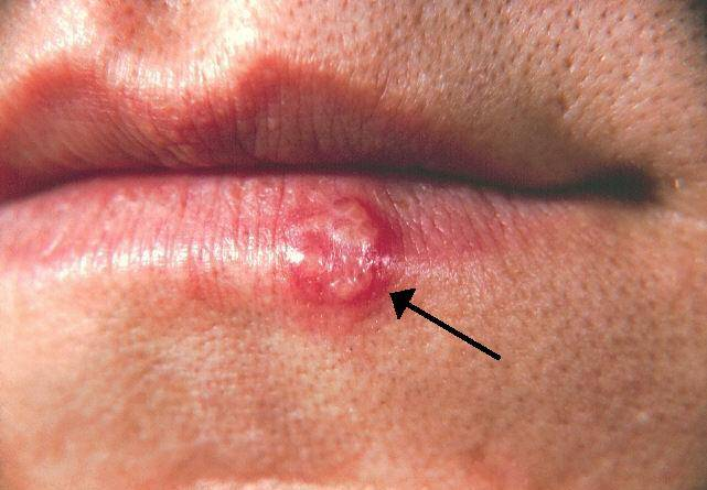 Cold sore/Herpes labialis (Picture from Wikipedia Commons )