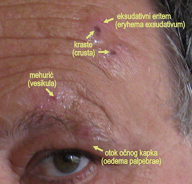 Eye Pain and Painful Eye Socket Causes, Pictures, Other Symptoms ...