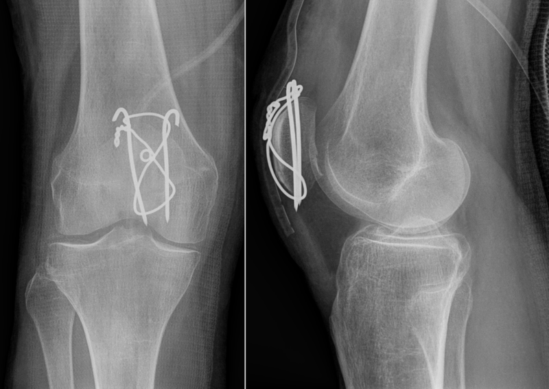 Shattered Knee http://www.healthhype.com/knee-cap-injury.html