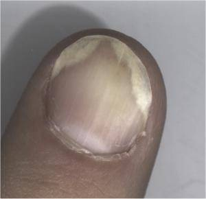 Psoriasis fingernail