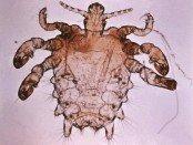 Pthius_pubis_-_crab_louse