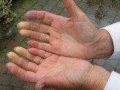 Raynaud hand