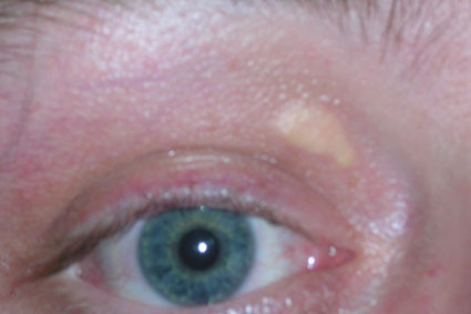 Cholesterol Deposits On, Under, Around Eyes, Eyelids, Pictures