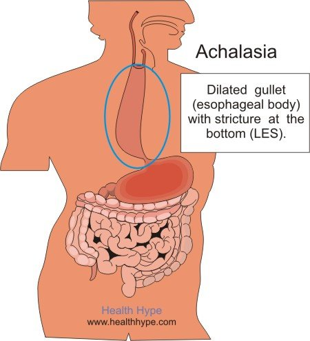 what is achalasia? esophagus, lower esophageal sphincter (les, Human Body