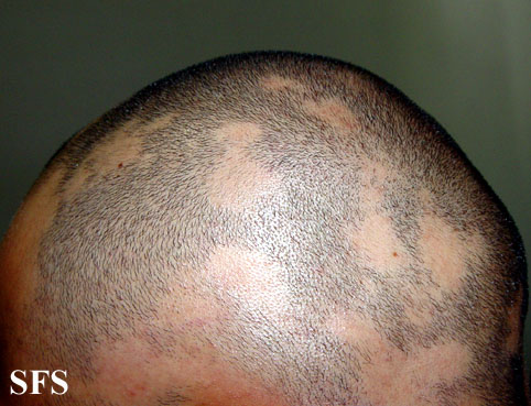 Patchy hair loss on face