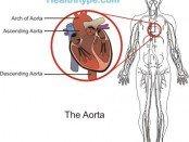 Aorta Picture