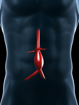 aneurysm illustration