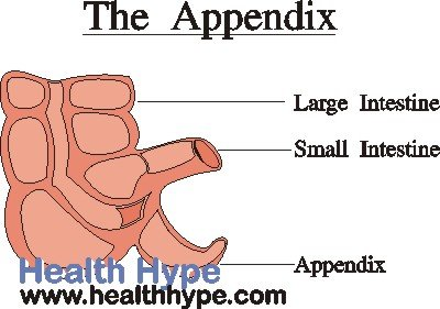 Warning Signs Of A Dangerous Burst Appendix