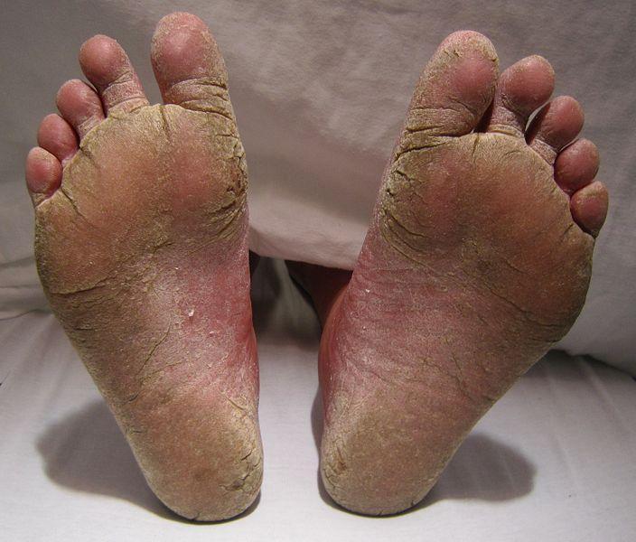 burning toes causes injury diseases drugs deficiencies