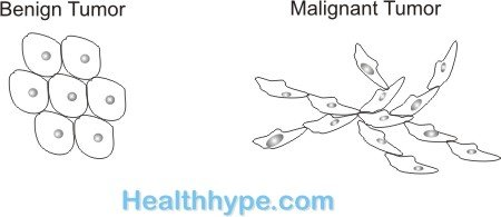 Benign and Malignant Tumors