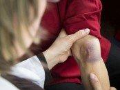 Bruise (Hematoma)