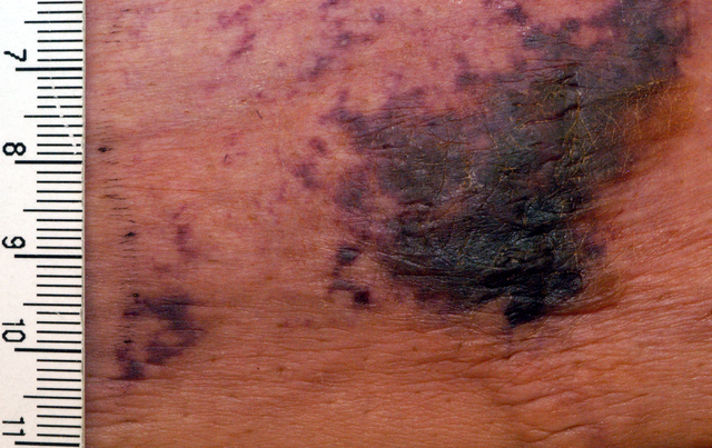 Calciphylaxis (Calcified Skin Blood Vessels)