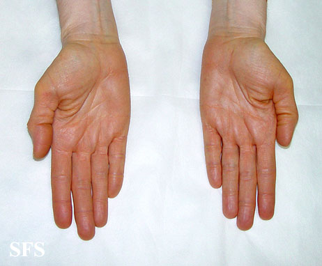 Lump in Palm of Hand | Med-Health.net