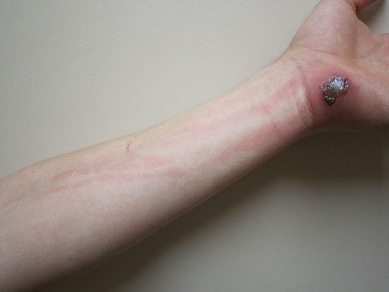 Infection With Red Streaks - Doctor insights on HealthTap