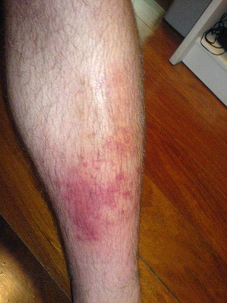 How To Prevent Cellulitis In Diabetes And Poor Circulation