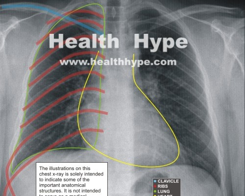 Parts of a Chest X-Ray