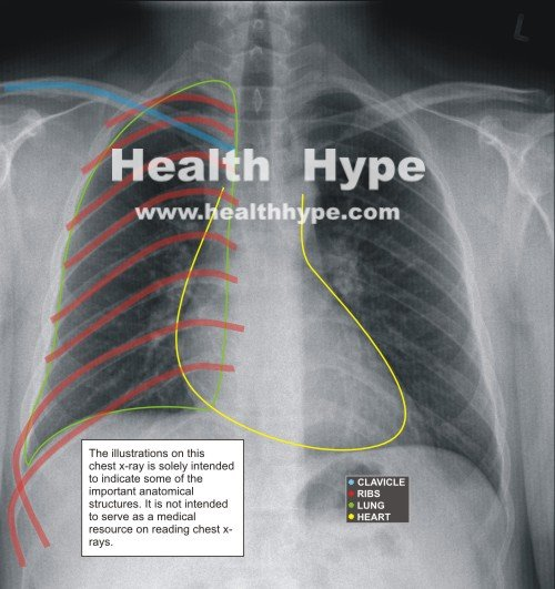 Chest X-Ray Guide, Abnormalities of Lung and Heart Diseases