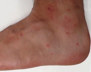 chiggers ankle