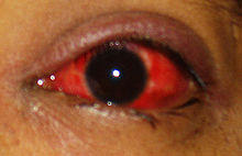 What To Do For A Chemical Eye Injury And Burning
