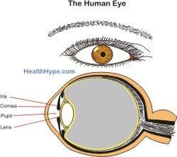 lasix eye surgery and reading glasses