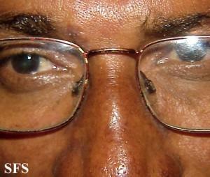 contact dermatitis eye