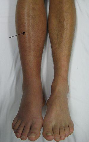 Swollen Calf Muscles – Causes of Swelling of Back of Lower Leg