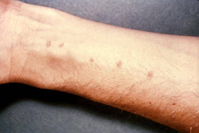 Swimmer's itch - schistosome dermatitis, caused by flukes