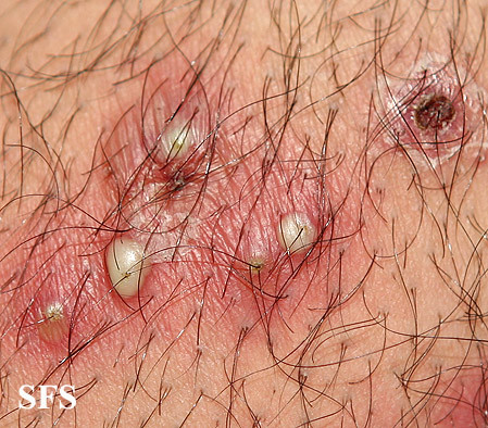 Staph skin infections-folliculitis