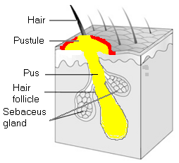 Folliculitis picture