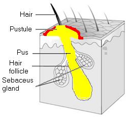 Folliculitis picture