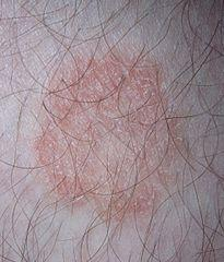7 Common Causes of Itchy Groin and Skin Rash