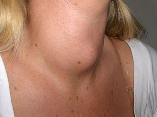 thyroid enlargement (goiter) from lithium use | healthhype, Skeleton