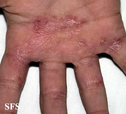 Split Nail Causes & Remedies   Fingernail Problems   Nail ...