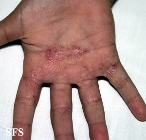 hand fungus picture