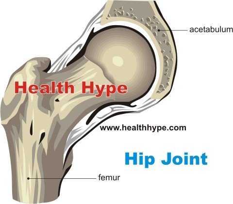 Hip Pain and Hip Joint Pain – Causes and Other Symptoms