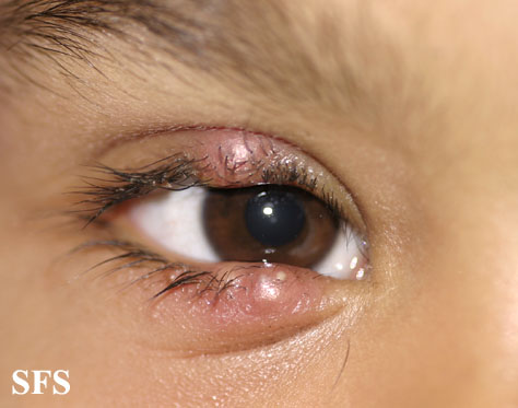 Itchy Eyelids – Pictures, Causes and Treatment | Healthhype.com