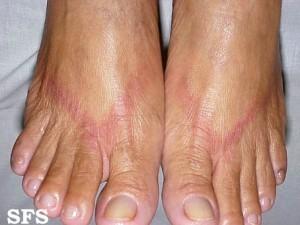 Irritant contact dermatitis  DermNet New Zealand
