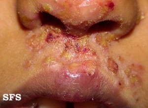 impetigo mouth