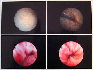 Trigonitis (Trigone of the Urinary Bladder Cell Changes ...