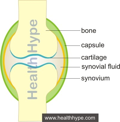 Inflamed Joints (Arthritis) Causes, Pathophysiology, Symptoms
