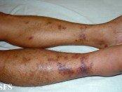 kaposi's sarcoma legs