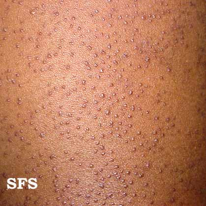 Picture 1 . Thickened hair follicles in keratosis pilaris.