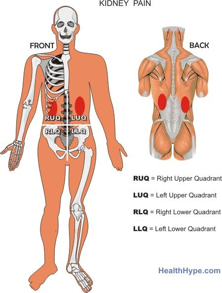 heart attack pain location. RUQ Abdominal Pain
